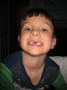 Nicholas lost his front tooth this month